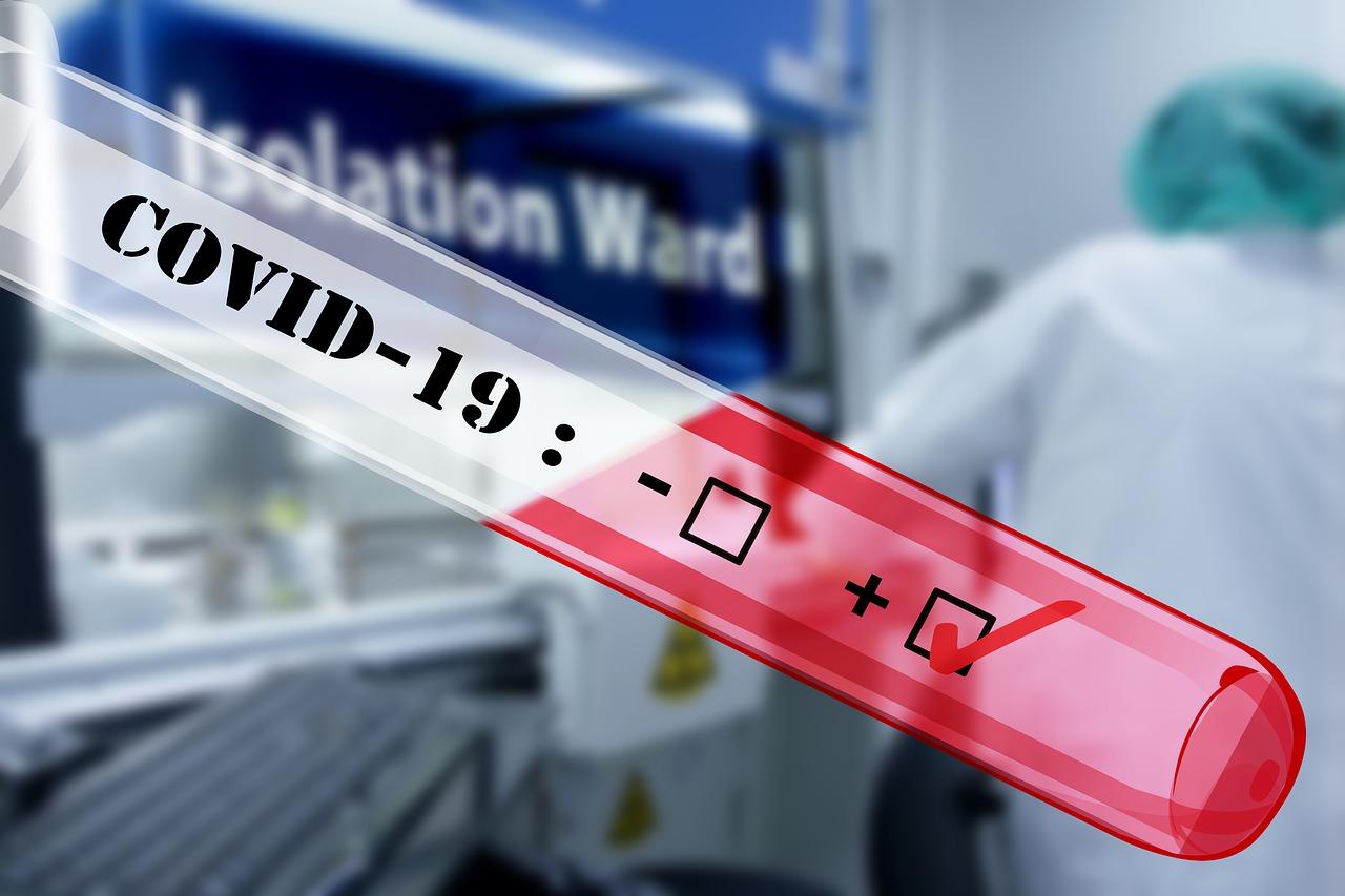 Alianza al servicio de la región potencia el diagnóstico y estudio sobre virus SARS.CoV2